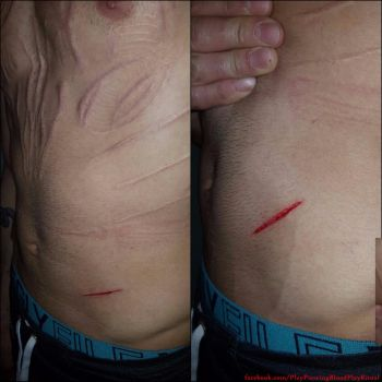 Belly scarification by TheChristOff