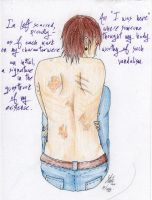 Our Scars Remind us by Eternity-Beckons