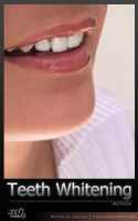 Teeth Whitening by Jean31