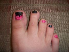 Pink and Black Toe Nails by QueenAliceOfAwesome