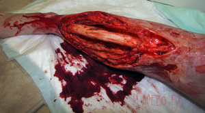 Exposed Tibia by PlaceboFX