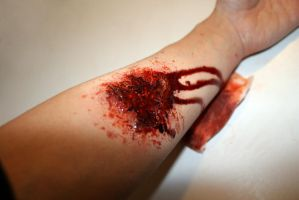 torn skin by RossMakeup