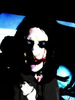 Jeff the Killer Scars by SnuffBomb