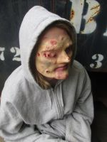 Diseased Homeless Woman by CoolChocoKitKat