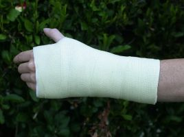 Fake Arm Cast by TimBakerFX