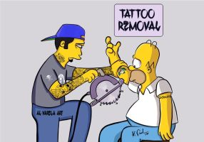 Homers tattoo removal by AlVarelaArt