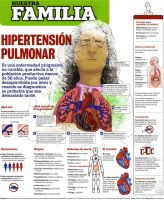 Hipertension Pulmonar by TetsuyaKenshi