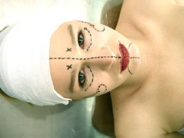 plastic surgery by beckawalley