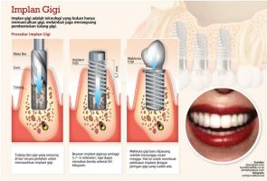 infographic teeth implant by malesbanget