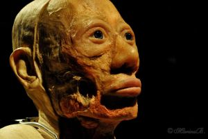 Bodies Revealed: 1 by AnAntichrist11