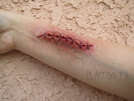 Stitches by PlaceboFX