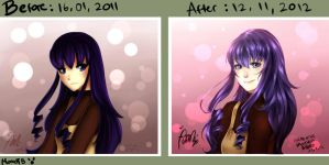 Before, After by MomoTB