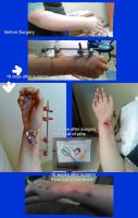 Accident - wrist progress by lethe-gray