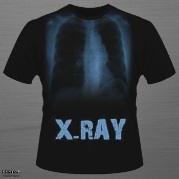 X - Ray T.S by SANTOOS