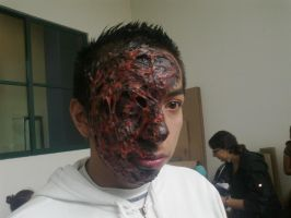 FX Makeup (Prosthetics of burn by fire 4) by Froheke