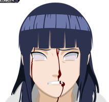 Hinata - Bleeding by iluminatilol